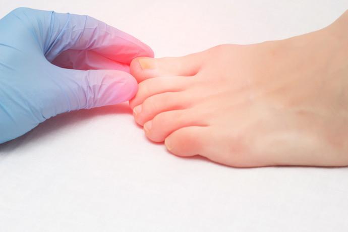 星野鍼灸整骨院 巻き爪の画像