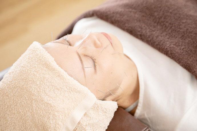 星野鍼灸整骨院 美容鍼の画像
