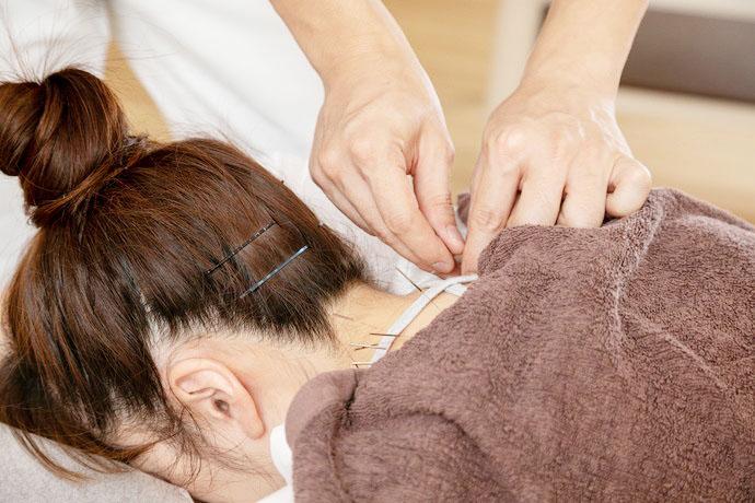 星野鍼灸整骨院 花粉症の画像
